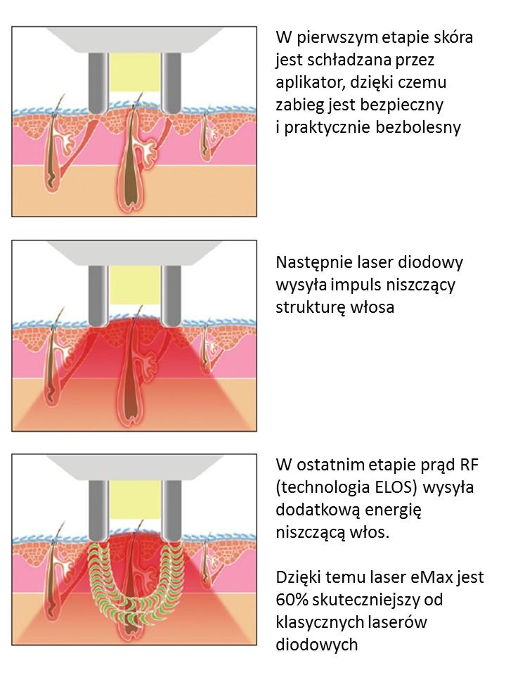 epilacja-laserowe-usuwanie-owłosienia-depilacja-wrocław-dermamed002