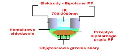 etwo-kompleksowa-formuła-odnowy-twarzy-medycyna-estetyczna-wrocław-002