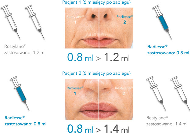 ilustracja różnic w wydajności i czasie utrzymywania się Radiesse i kwasu hialuronowego Restylane: