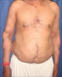 tłuszczakowatość