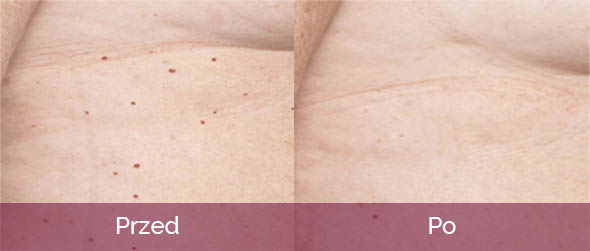dermatochirurgia