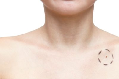 plastyczne usuwanie zmian skórnych