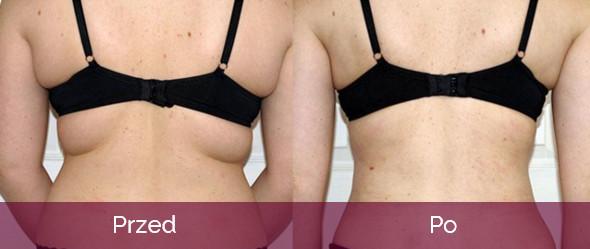 liposukcja vaser