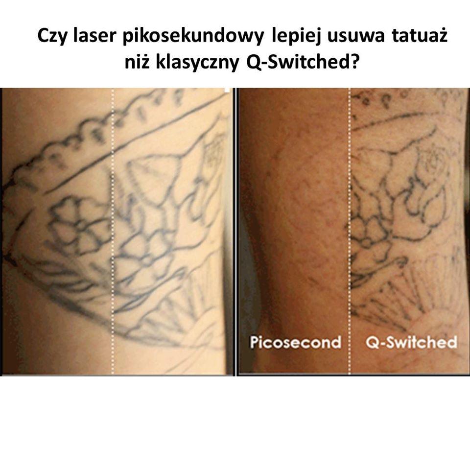 Czy laser pikosekundowy lepiej usuwa tatuaż niż klasyczny Q-Switched?