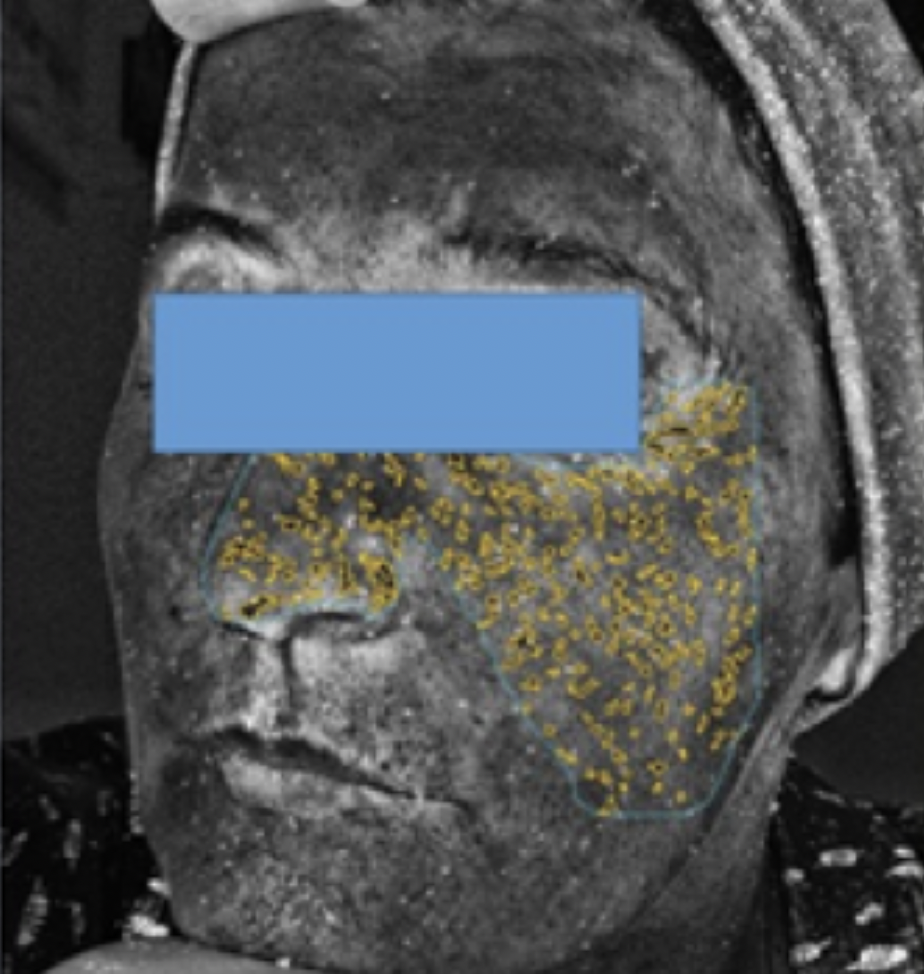 Ntihya-Atelokolagen-Linerase-Mezoterapia
