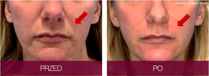 Rezultat zabiegu Sofwave bruzdy nosowo-wargowe
