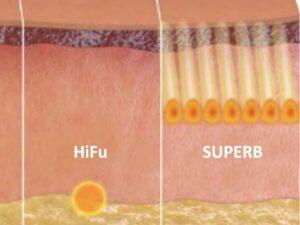 Porównanie Sofwave z Ulthera Dermamed