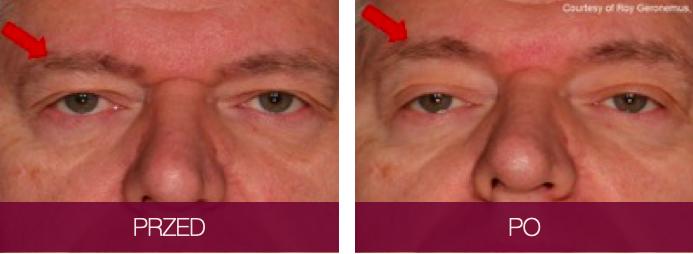 Efekty zabiegu Sofwave okolica oka